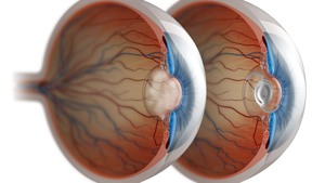 Cataract Surgery in People with Retinal Diseases