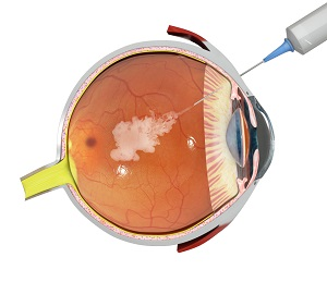 Intravitreal Injection for Macular Edema