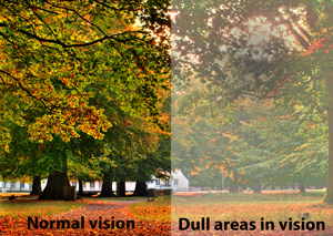 Shadows or Dull Areas in the Vision