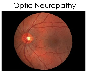 optic-neuropathy
