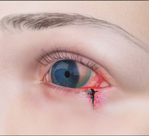 Treatment of Orbital or Ocular Tumor